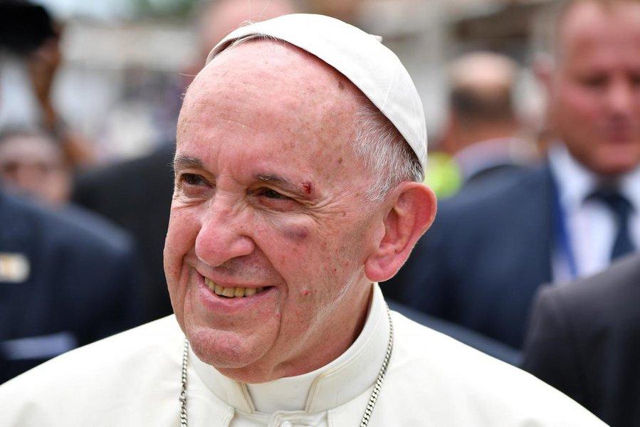 Papa Francisco machuca o rosto na última etapa de viagem à Colômbia