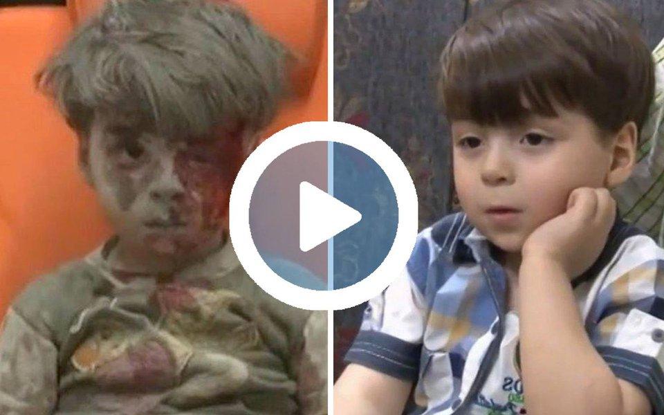 Fotografado no ano passado sujo de sangue e de poeira após ser resgatado de um bombardeio em Aleppo, Omar Daqneesh apareceu em reportagens de TV de canais da Síria, da Rússia e do Líbano; nas imagens feitas em 2017, ele aparece saudável ao lado de seu pai, que por um ano o protegeu do assédio da mídia internacional