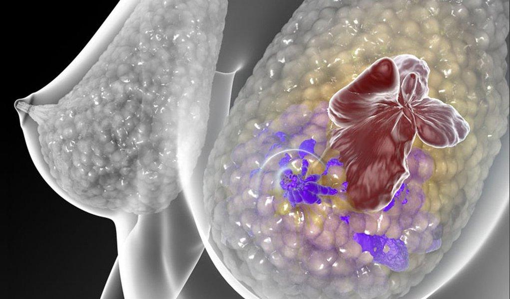 Somente este ano o câncer de mama matou 115 mulheres em Alagoas; estimativa é de que o estado feche 2016 com 520 novos casos, sendo 270 em Maceió; no Brasil, o câncer de mama também é o mais incidente no público feminino de todas as regiões, exceto na região Norte; para este ano, foram estimados 57.960 casos novos, que representam uma taxa de incidência de 56,2 casos por 100.000 mulheres