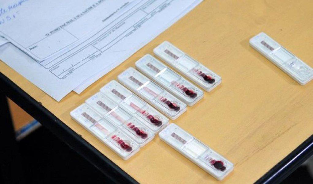 A Secretaria de Saúde confirmou 16.926 moradores de Brasília com dengue — doença transmitida pelo Aedes aegypti — desde janeiro; os dados constam do Informativo Epidemiológico nº 30; de acordo com o levantamento, outras 2.167 pessoas, de outras unidades da Federação, foram diagnosticadas na rede pública do Distrito Federal; os casos apresentados no boletim são de até 23 de julho; Brazlândia é a região administrativa com o maior número de infectados: 1.929