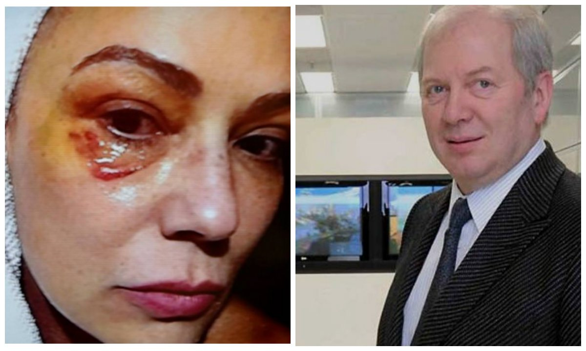 """Desta vez, a agressão ocorreu nas redes sociais; o bilionário Lírio Parisotto disse já ter sido agredido por Luiza Brunet, tendo, segundo sua versão, levado dez pontos; Parisotto, que está proibido de se aproximar da ex-namorada, a chamou de """"criatura hipócrita"""""""