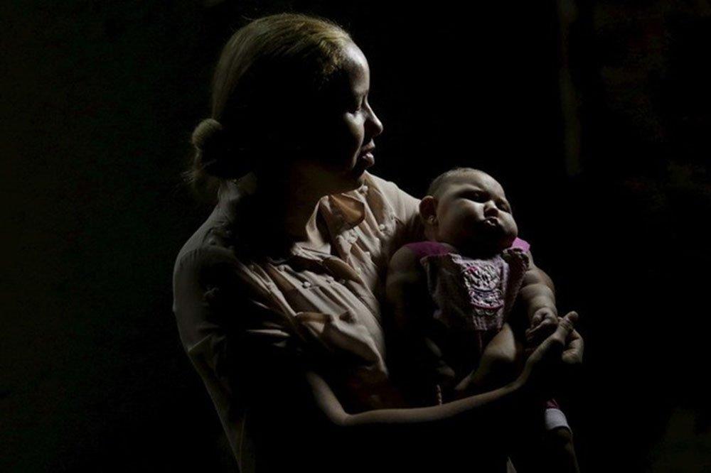 Mãe segurando filha com microcefalia em Recife. Casos de microcefalia em bebês foram relacionados ao Zika vírus no Brasil. REUTERS/Ueslei Marcelino