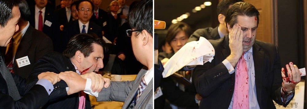 """A Coreia do Norte declarou hoje (5) que a agressão do embaixador norte-americano, Mark Lipper, em Seul era """"um castigo justo"""" pela decisão dos Estados Unidos de fazer exercícios militares conjuntos com a Coreia do Sul; """"Castigo justo para os belicistas dos Estados Unidos"""", disse a agência oficial da Coreia do Norte, KCNA, no título de um breve texto, no qual o ataque contra Lippert é chamado de """"expressão de resistência"""""""