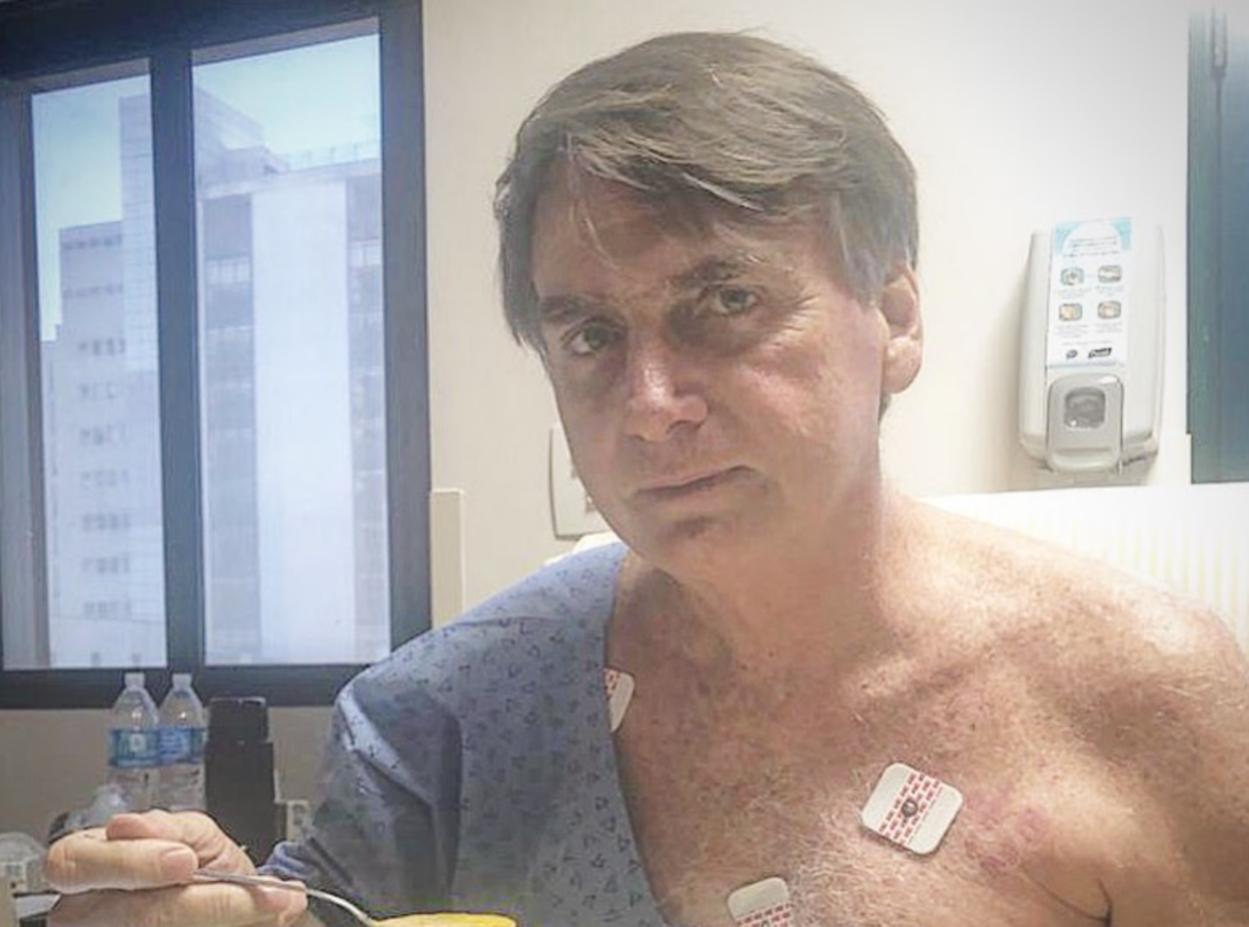 Bolsonaro: pneumonia regride, mas não há previsão de alta