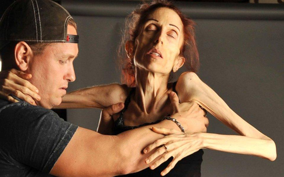Anorexia. O que se passa no cérebro das vítimas