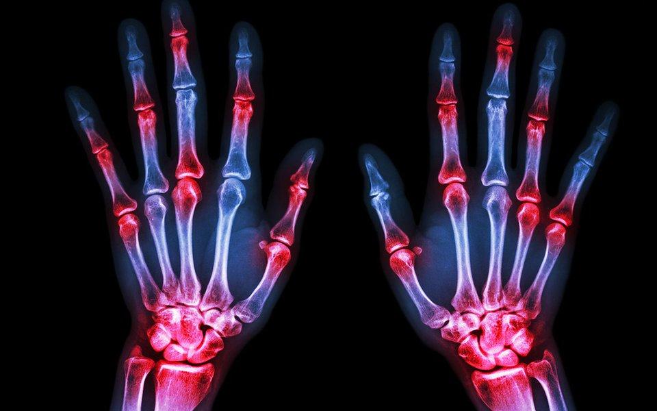 Reumatismo e gota. Doenças que ressurgem a todo vapor