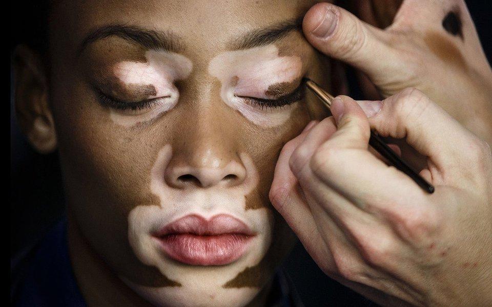 Vitiligo. Uma esperança para a repigmentação da pele