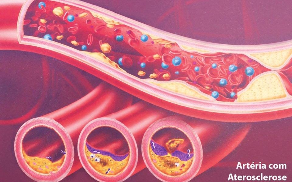 Aterosclerose. Por que nossas artérias entopem?