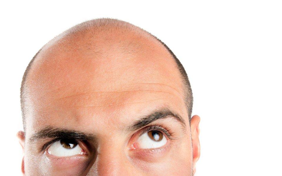 O algoritmo da calvície. Genes ajudam a prever a perda de cabelo em homens
