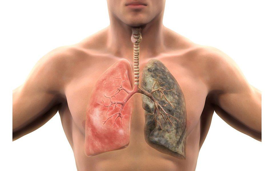 Enfizema. Muitos sofrem de doença pulmonar crônica obstrutiva (DPCO) sem sabê-lo