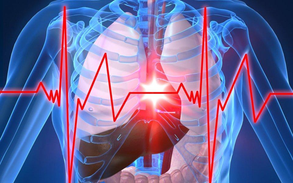 Por que as artérias entopem. Causas da aterosclerose, uma importante causa do infarto