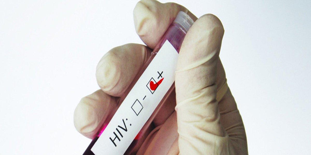 """ONU diz que luta global contra Aids está em """"situação precária"""""""