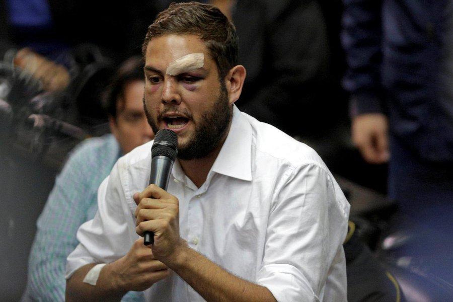 Venezuela determina prisão de políticos oposicionistas após explosão de drones