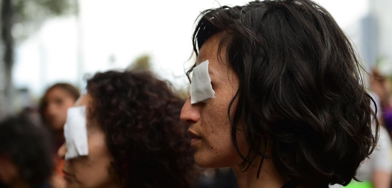 Mais de 200 pessoas ficam cegas no Chile com repressão aos protestos