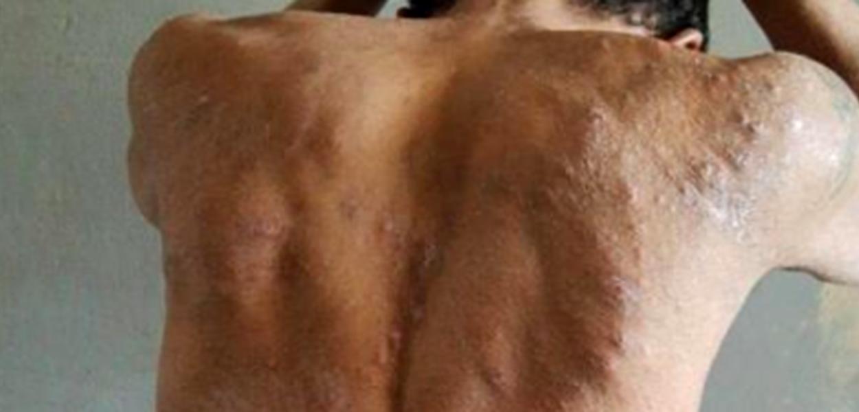 Presos com doença de pele