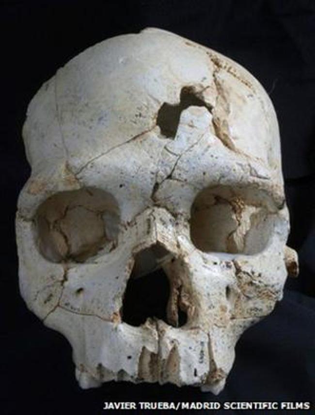 Crânio de 460 mil anos com ferimento na fronte