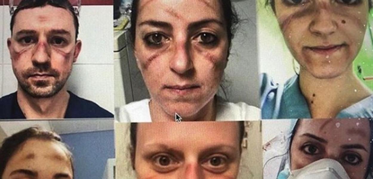 Médicos com marcas no rosto devido uso intenso de máscaras