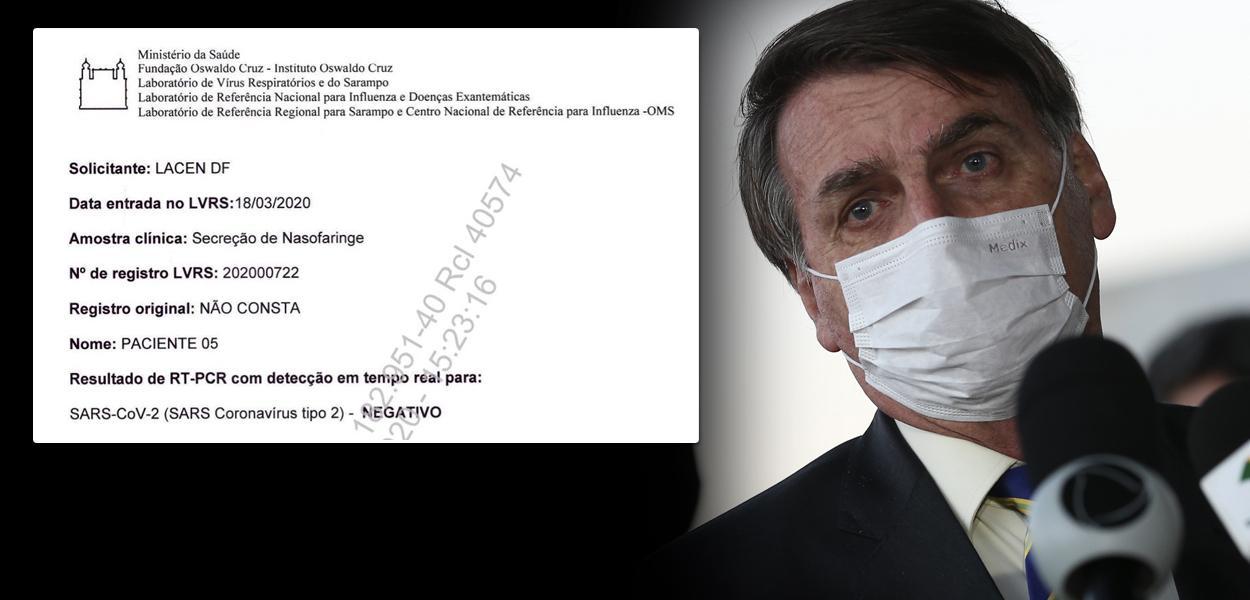 Jair Bolsonaro e exame de coronavírus da Fiocruz