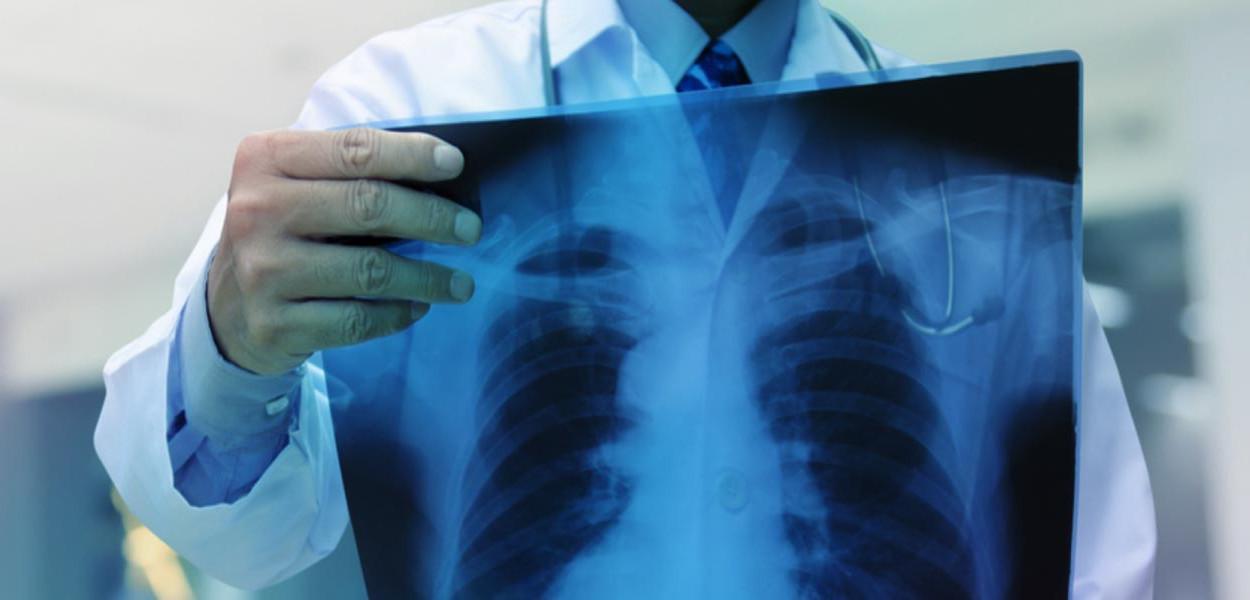 Radiografia de pulmão