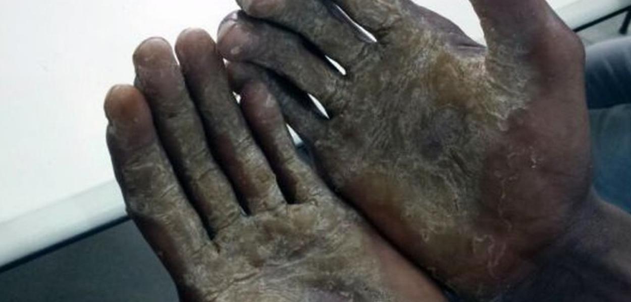 Mãos de empregada doméstica escravizada