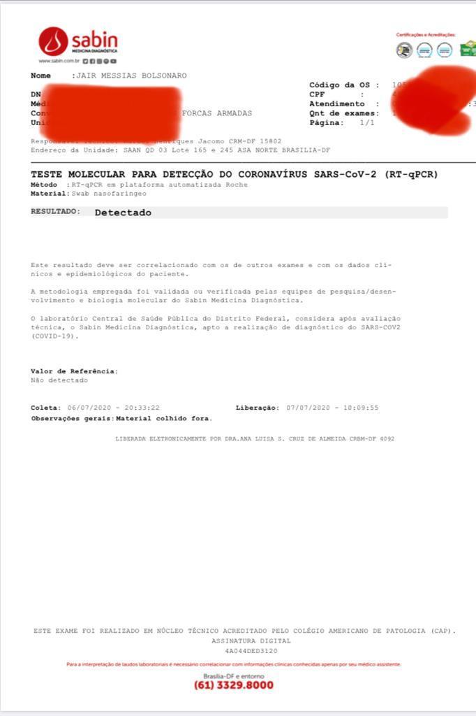 exame-bolsonaro-coronavírus-hidroxicloroquina