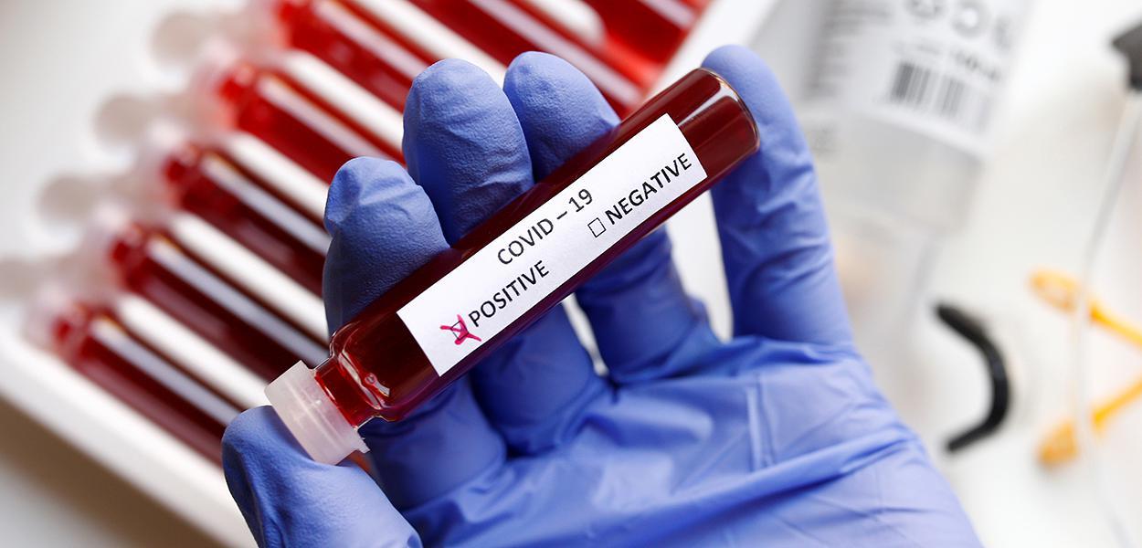 Casos de coronavírus no mundo superam 12 milhões, mostra contagem da Reuters