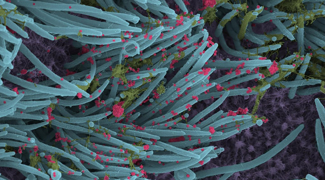 Coronavírus atacam células ciliares do pulmão