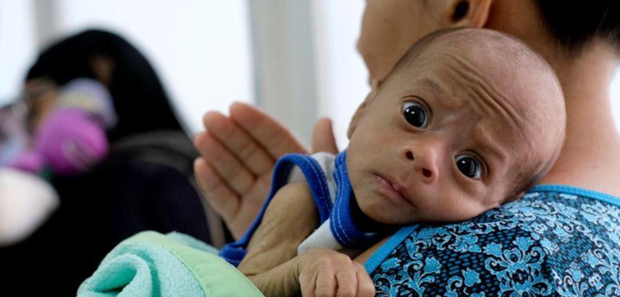Mãe aguarda com seu filho de 2 meses, diagnosticado com desnutrição, por exame em clínica venezuelana