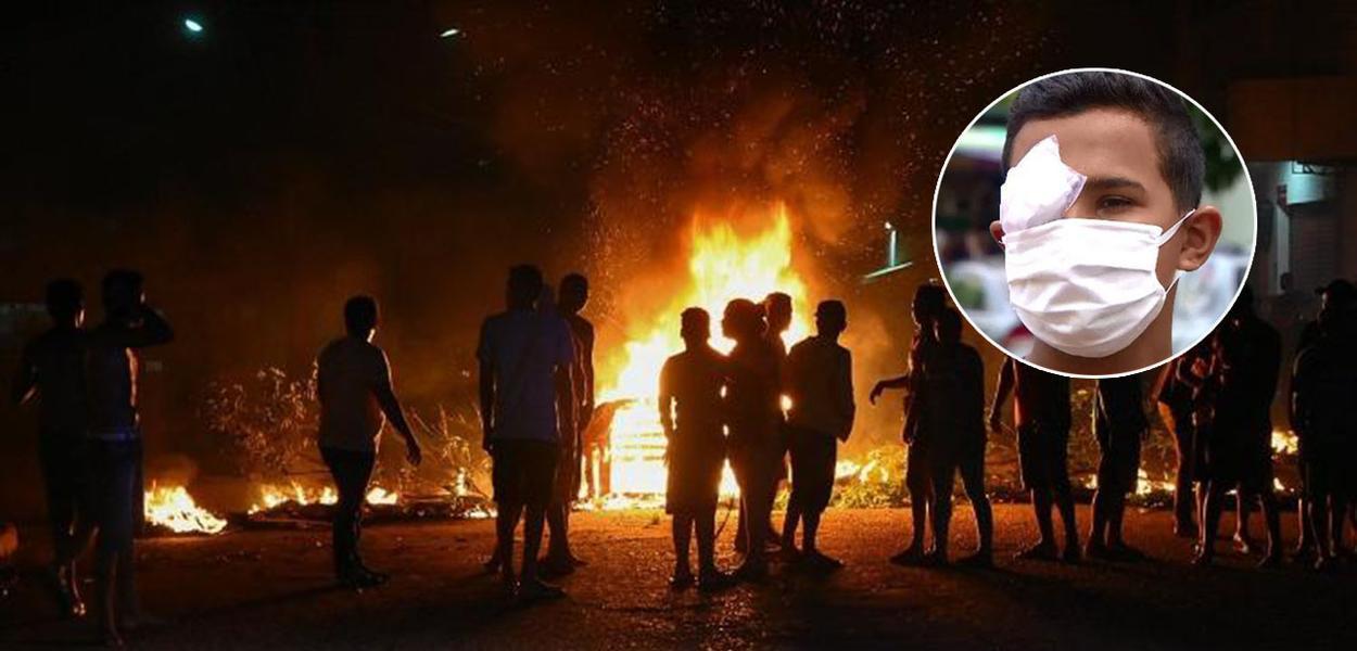 PM registra atos em várias localidades do Amapá. Em um deles um jovem perdeu a visão do olho direito