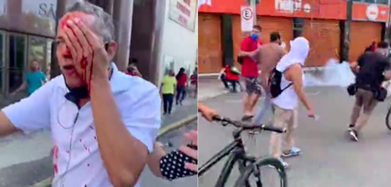 Homem é atingido no rosto pela Polícia de Pernambuco no Recife