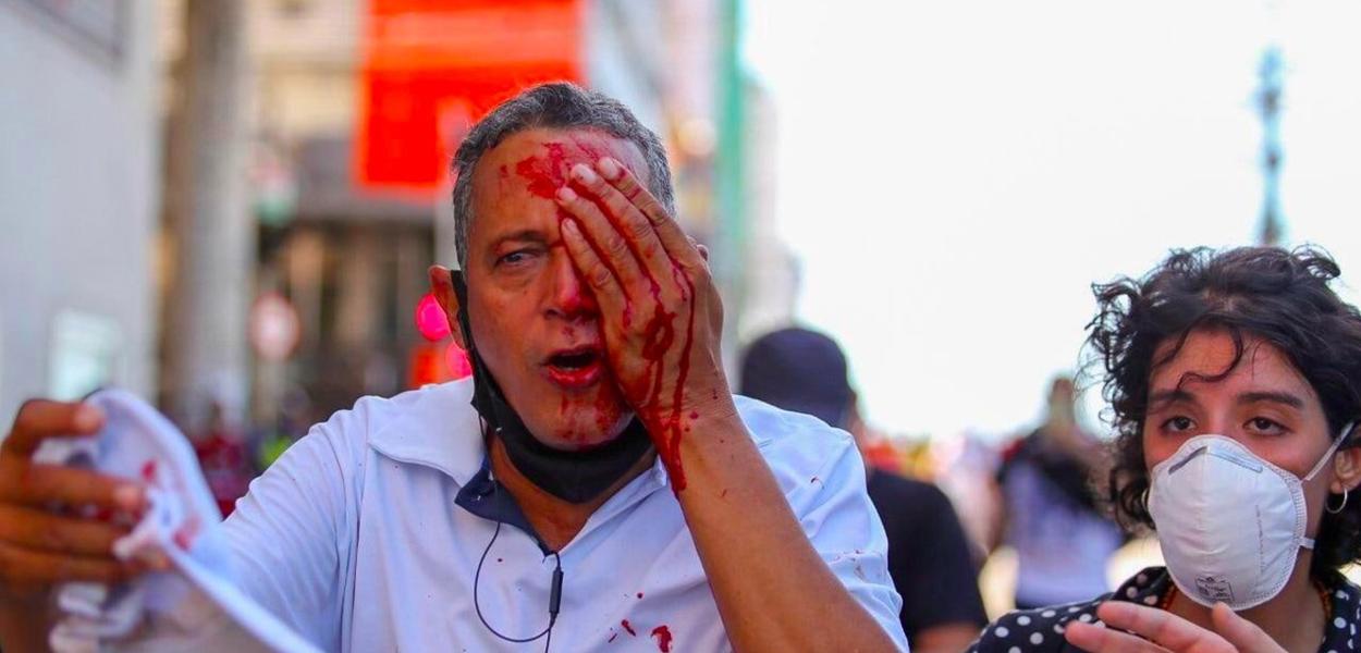 Daniel Campelo da Silva perdeu o olho após ser atingido no olho pela PM de Pernambuco