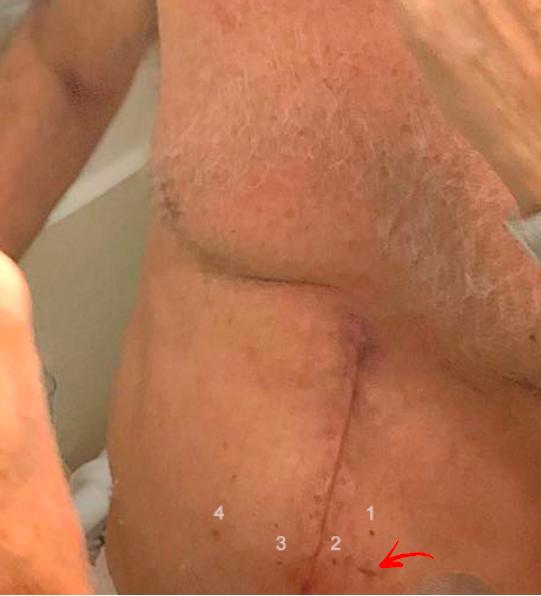 Bolsonaro posta foto no Instagram fazendo barba no Einstein, em 28/09/2018 (a cicatriz está do lado invertido porque a imagem é a refletida no espelho)