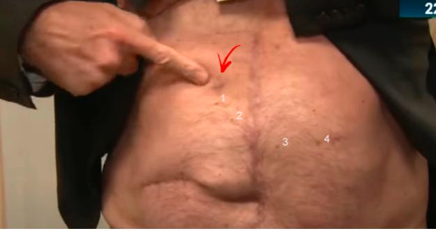 Bolsonaro-SBT-cicatriz-facada-fakeada