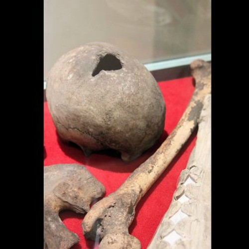 The bones which are believed to belong to English martyr and priest St. John Plessington.