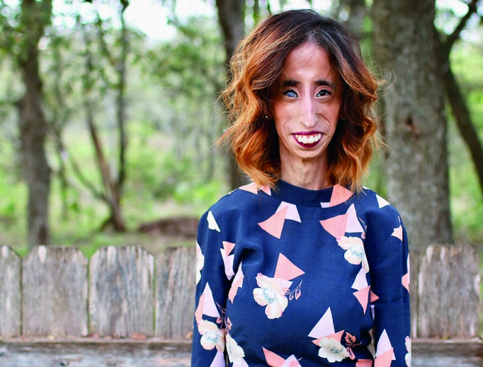 'Be truly and authentically yourself,' says motivational speaker Lizzie Velasquez.