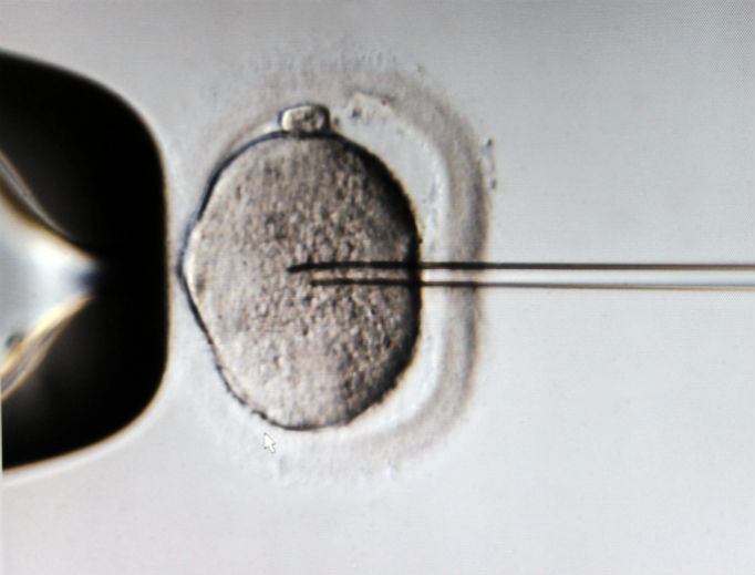 A monitor shows the microinjection of sperm into an egg cell using a microscope at the Kinderwunschzentrum in vitro fertilization clinic, in Leipzig, Germany.