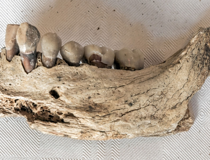 The jaw and teeth of St. Eanswythe.