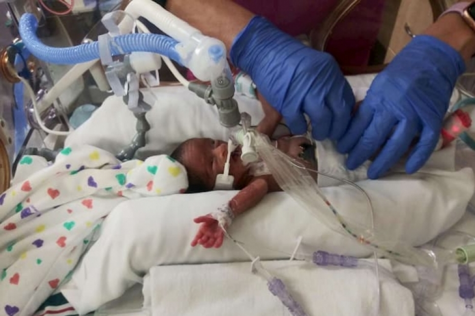 Baby Gloria during her first days in the NICU.