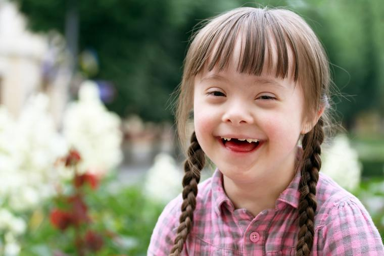 A young girl with Down syndrome.