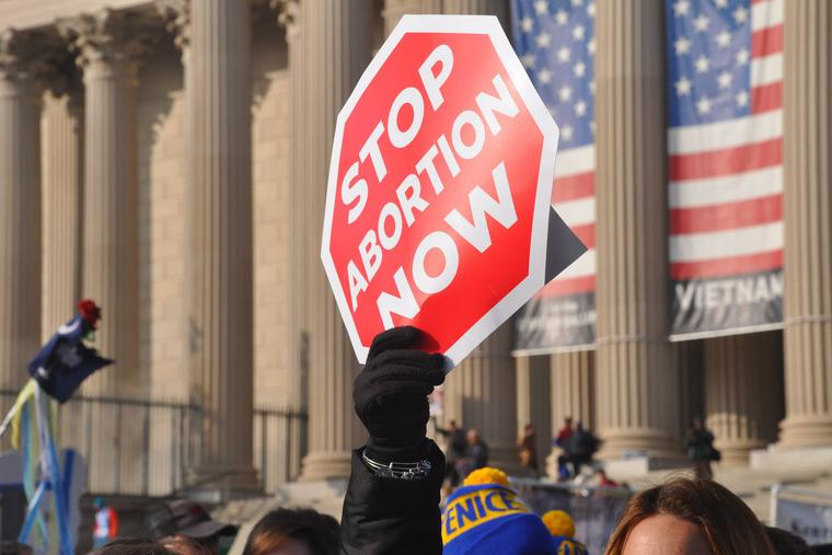 The Texas Heartbeat Act bans abortion after 6-weeks once a fetal heartbeat is recognized.