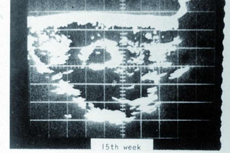 These images were contemporaneous with figure 6 (c. 1970) but taken on the Picker ultrasound machine which was used in the USA. The image resolution was poor and intracranial structures such as the midline echo were difficult to visualise.