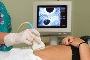 trudnoća, abortus