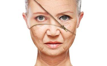 starenje