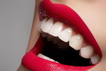 zubi, izbjeljivanje zuba