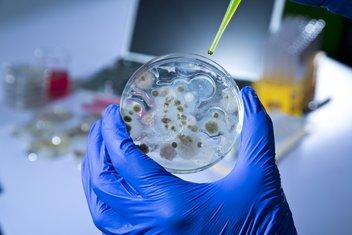 ebola, laboratorija
