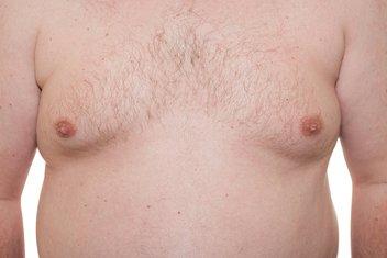 muške bradavice
