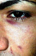 LGBT osoba napad