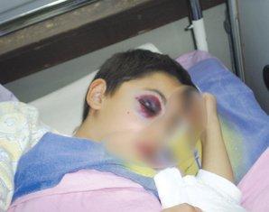 Povrijeđeni dječak Nedakusi