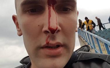 Povrijeđeni policajac Kerim Topuzović