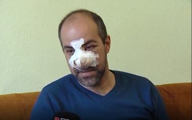 Igor Tomkić nakon prebijanja